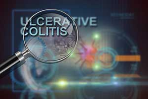 What is ulcerative colitis (UC)